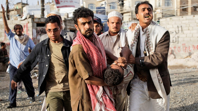 Anti-government protestors carry a wounded demonstrator to a field hospital during clashes with Yemeni security forces in Sanaa, Yemen, Wednesday, May 11, 2011. (AP / Hani Mohammed)