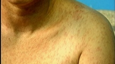 Measles shoulder