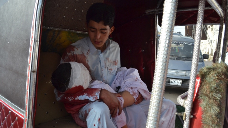 A Pakistani boy carries an injured child in rickshaw to a hospital in Quetta, Pakistan on Friday, Aug. 9, 2013.(AP / Arshad Butt)