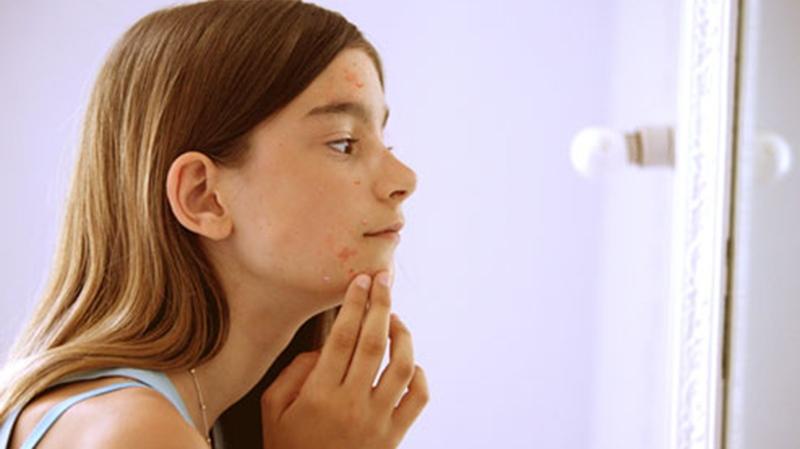 childhood acne
