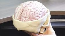 Researchers 'speak' to man in vegetative state