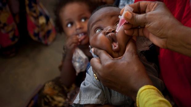 Polio outbreak in Somalia