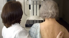 MSU Radiology Department Mammographer Jackie Riley, left, prepares Jean Lockwood for a digital mammogram in East Lansing, Mich., Monday, Oct. 22, 2001. (AP / Lansing State Journal, Becky Shink)