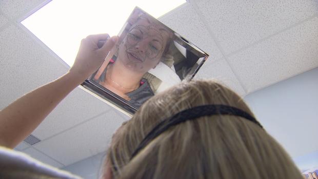 Better Than Botox Natural Alternatives Promise Big