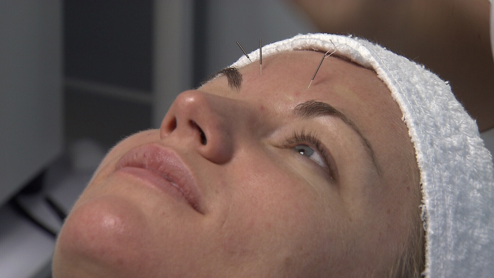 Kim Payne undergoes cosmetic acupuncture at a Vancouver clinic.  The treatment costs $125 per session, with results expected in 10 to 12 sessions. (CTV)