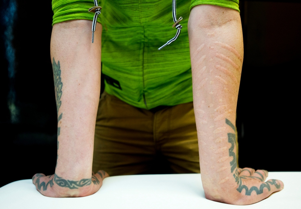 Blair McLean shows off his scarification