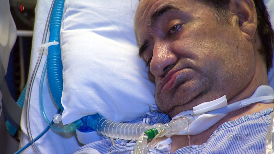 Hassan Rasouli has been on life support for three years. The Supreme Court of Canada ruled in favour of his family on the matter of life support, Friday, Oct. 18, 2013.