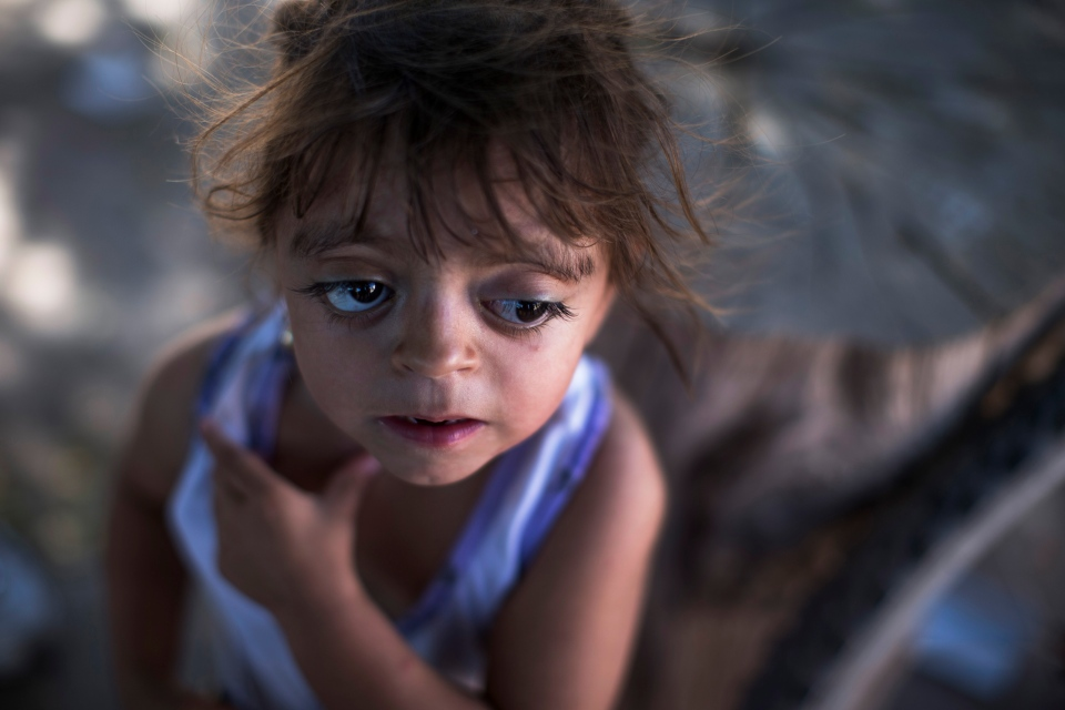 In this March 31, 2013, photo, Camila Veron, 2, born with multiple organ problems and severely disabled, stands outside her home in Avia Terai, in Chaco province, Argentina. (AP Photo/Natacha Pisarenko