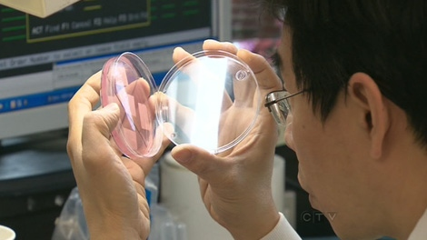 There are growing concern around a C. difficile outbreak in southern Ontario.