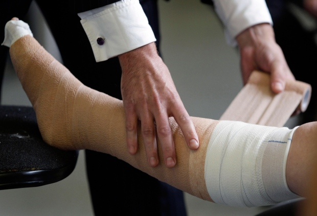 Compression bandages work as well for lymphedema