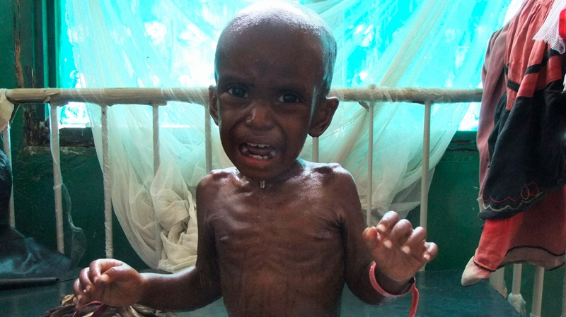 Ali Omar, a 3-year-old malnourished child from southern Somalia cries on bed at Bandar hospital, Mogadishu, Somalia, Tuesday, July 26, 2011, after fleeing from southern Somalia. (AP / Farah Abdi Warsameh)