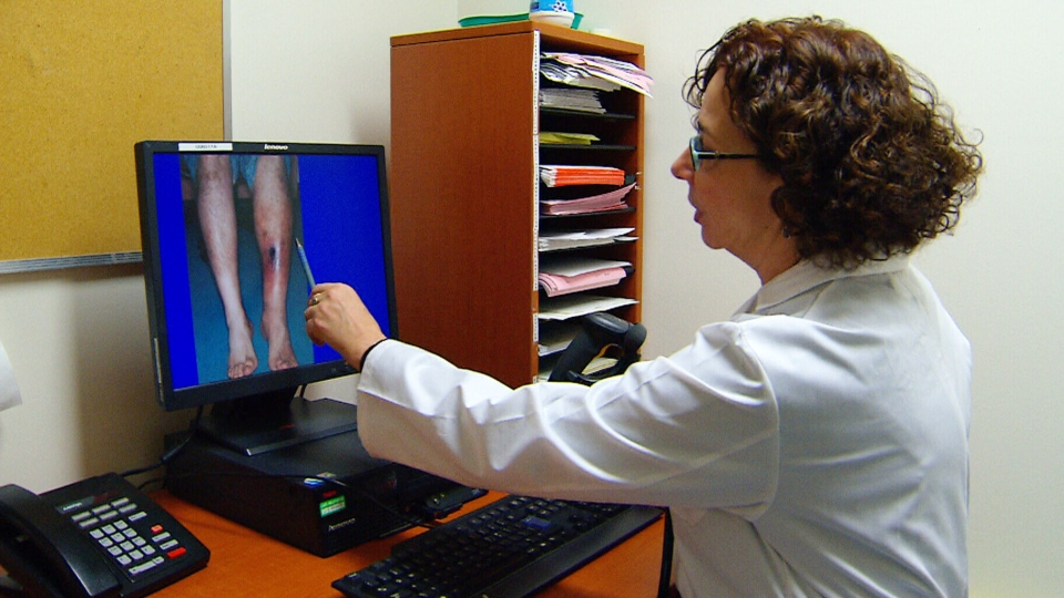 Dr. Susan Kahn points to a photo of a patient with deep vein thrombosis in her Montreal office.