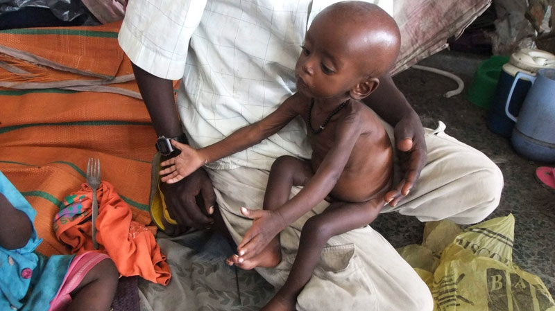 A malnourished child from southern Somalia sits on his fathers lap at a camp in Mogadishu, Somalia, Wednesday, Aug 3, 2011. (AP / Farah Abdi Warsameh)