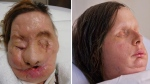 Chimpanzee attack victim Charla Nash is seen after the attack, left, and post-face transplant surgery, right. (Brigham and Women's Hospital, Lightchaser Photography)