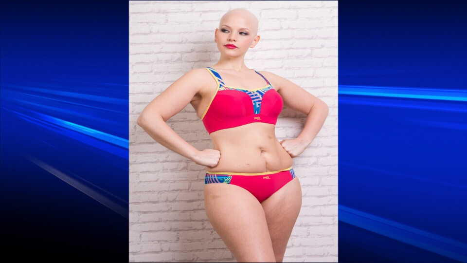 Local model Elly Mayday, 25, says she kept modelling after being diagnosed with a rare ovarian cancer because she wants to challenge the way the industry perceives beauty. Jan. 16, 2014. (Courtesy Forever Yours Lingerie)