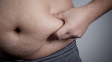 More than half the population is now overweight, with one out of four considered obese. (staticnak/shutterstock.com)