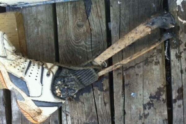A foot with a leg bone attached was found in Vancouver's False Creek on Aug. 30, 2011. (CTV)