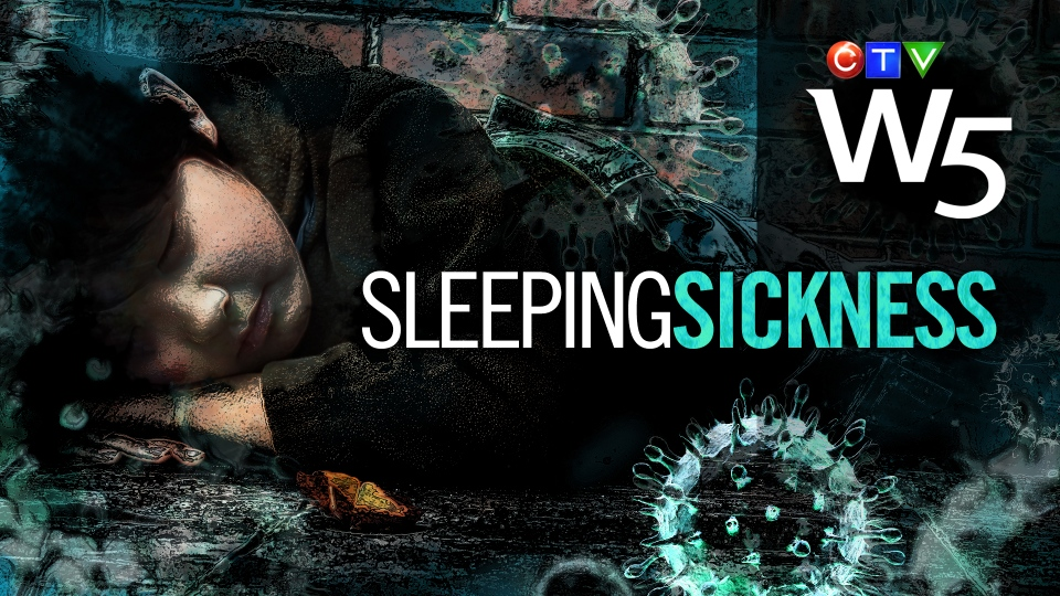 W5 Sleeping Sickness: Narcolepsy in children