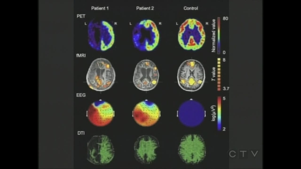 Images of brain activity show, from left, someone with a profound injury, someone partially responsive and a health person.
