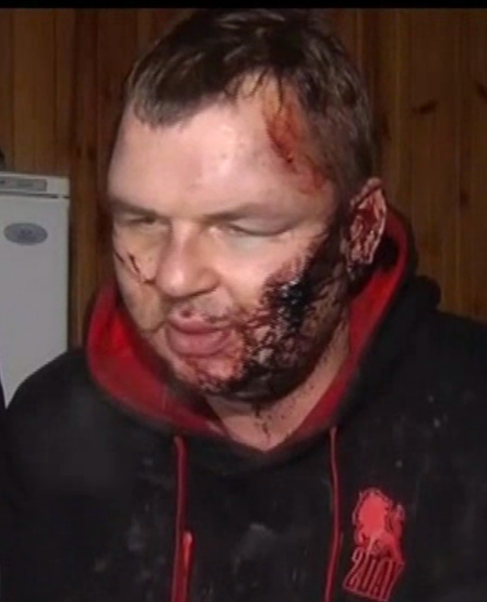 Dmytro Bulatov speaks to press after he was found near Kyiv, Ukraine, Jan. 31, 2014. (5 Channel)