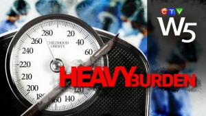 Heavy Burden: Teens take radical measures to treat obesity