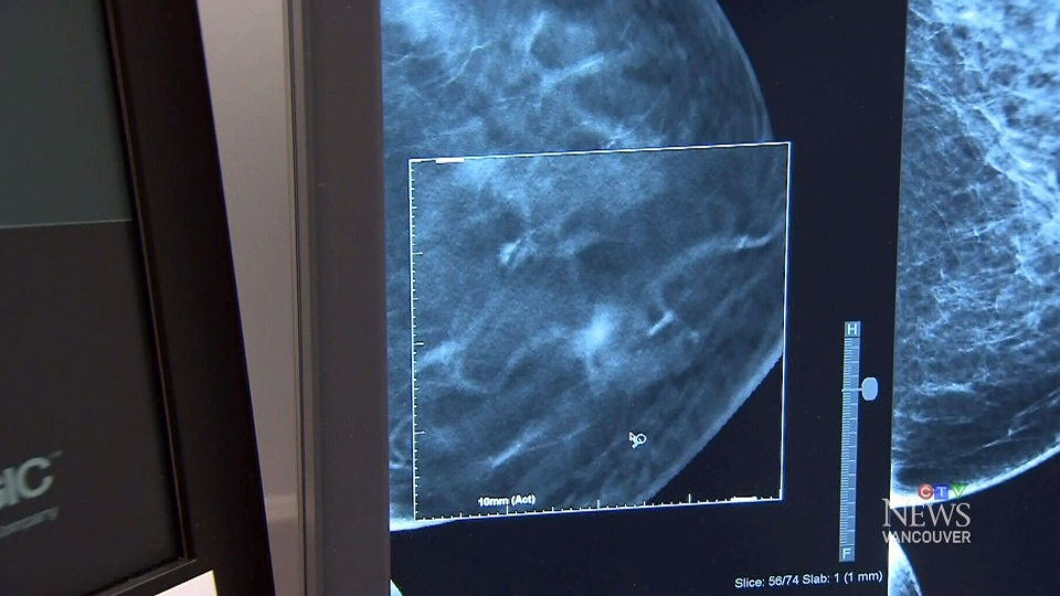 The B.C. Cancer agency changes its policy on mammogram screening.