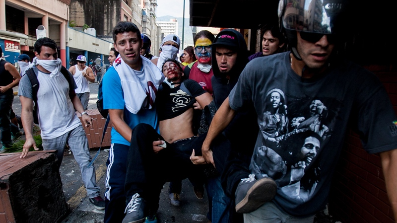 Student demonstrator Bassil Da Costa, who was shot in the head is carried away after clashes broke out between opposition protesters with security forces and pro-government supporters during a protest against the government in Caracas, Venezuela, Wednesday, Feb. 12, 2014. (AP / Alejandro Cegarra)