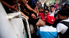 Demonstrator shot in the head in Venezuela protest