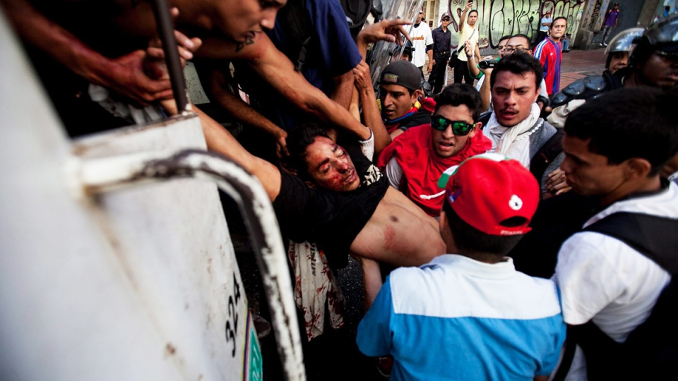 Student demonstrator Bassil Da Costa, who was shot in the head, is carried to a police vehicle after clashes broke out between opposition protesters with security forces and pro-government supporters during a protest against the government in Caracas, Venezuela, Wednesday, Feb. 12, 2014. (AP / Alejandro Cegarra)