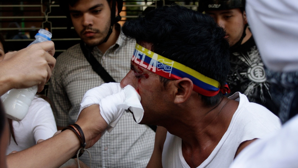 A man is helped by fellow protesters after he was hit in the face with a tear gas canister fired by riot police during an anti-government protest in Caracas, Venezuela, Saturday, Feb. 22, 2014. (AP / Juan Manuel Hernandez)