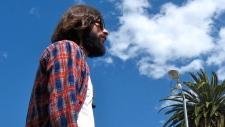 Beard transplants new hipster trend?