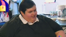 CTV Saskatoon: 600-pound man funding for surgery