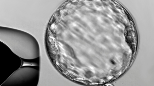 Gene editing used to alter DNA of human embryos