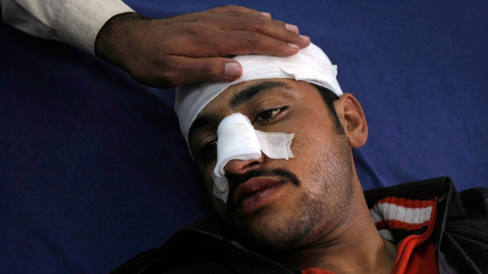 A Pakistani man, who was injured in a bomb blast near Peshawar, Pakistan, is comforted by a relative while laying in a hospital's bed receiving treatment, Saturday, March 1, 2014. (AP / Mohammad Sajjad)