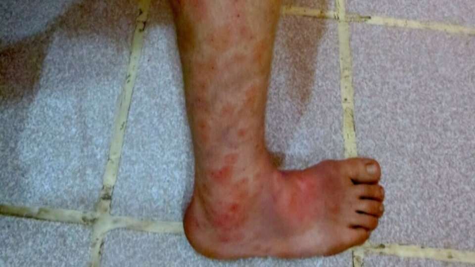 Bug bites and parasites are causing infections and diseases to Canadian travellers.