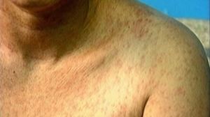 A measles rash is shown on a man's shoulder in this file image.