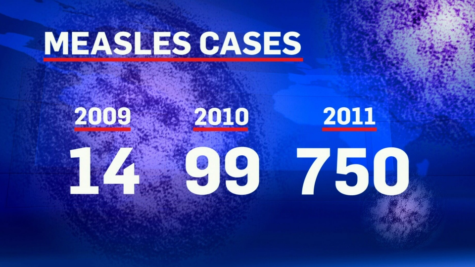 An alarming spike in measles cases has occurred in Canada where the disease should be all but eradicated.