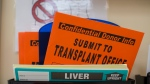 Organ donation paperwork is shown in St. Louis. (AP / Whitney Curtis)