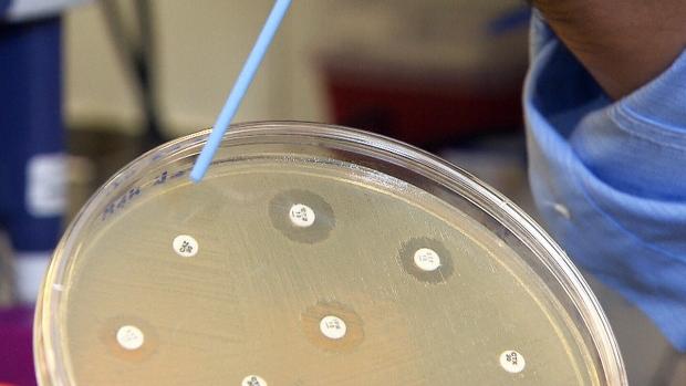 CTV News: Antibiotics losing to superbugs