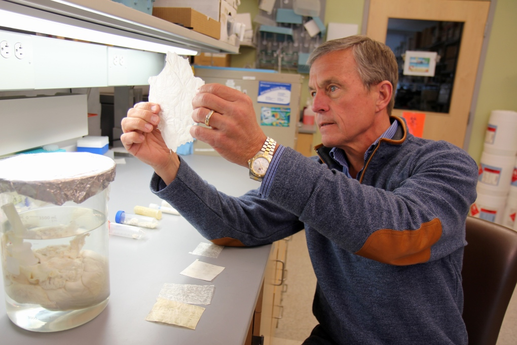 Dr. Stephen Badylak holds 'extracellular matrix'