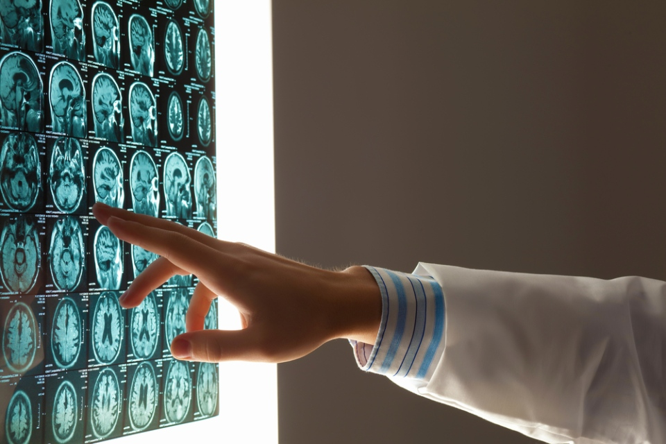 Brain scans are shown in this undated stock image. (Sergey Nivens / Shutterstock.com)