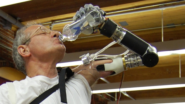 DEKA arm prosthetic