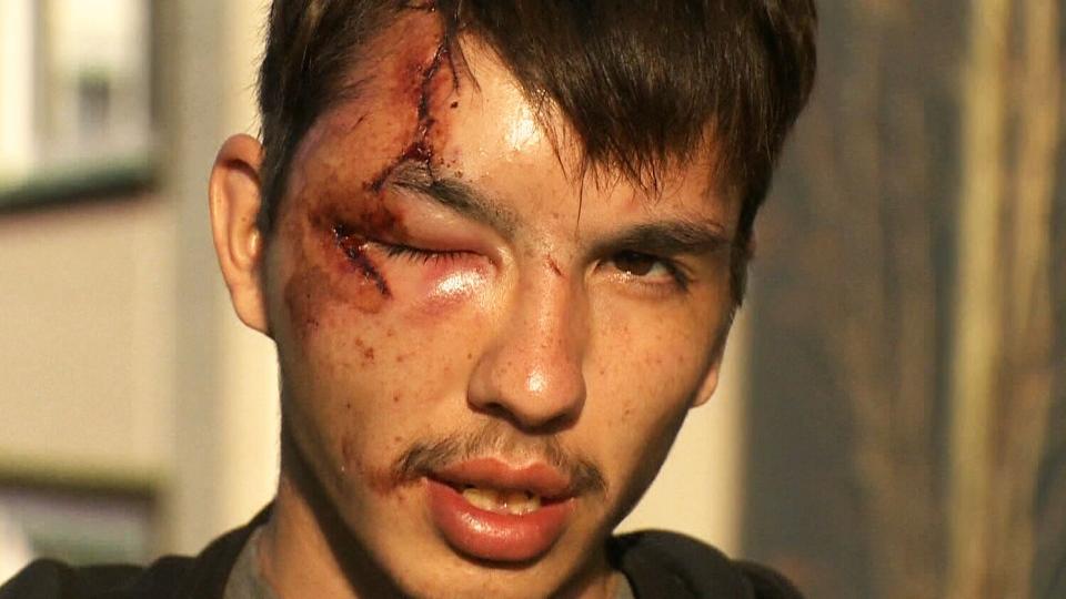 u0026 39 he just charged at me u0026 39   alberta man survives bear attack