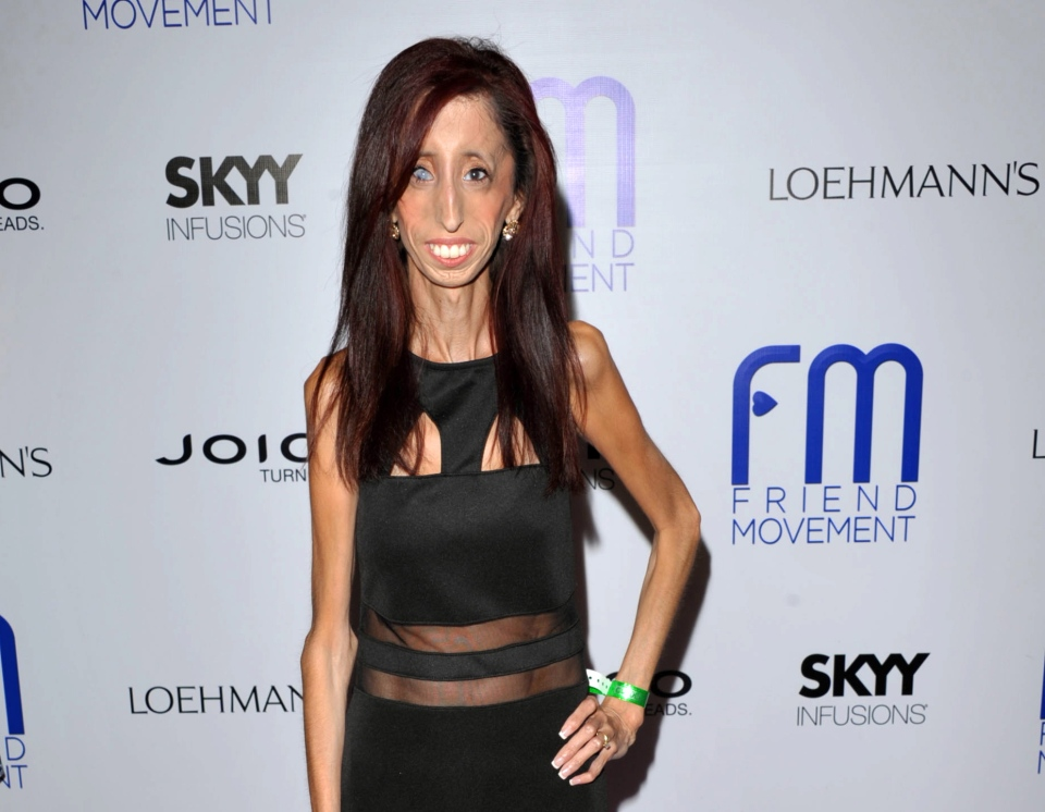 Lizzie Velasquez at the Friend Movement Anti-Bullying Benefit Concert at the El Rey Theatre in Los Angeles. (Photo by John Shearer/Invision/AP, File)