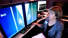 Dr. Karen Lindsfor, a professor of radiology and chief of breast imaging at the University of California, Davis Medical Center, examines the mammogram of a patient with heterogeneously dense breast tissue,  in Sacramento, Calif., on Sept. 14, 2011. (AP / Rich Pedroncelli)