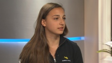 Teen inspires bionics exhibit