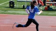 Toronto teen inspires bionics exhibit