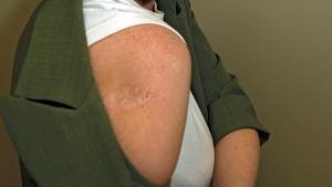 How to check for melanomas