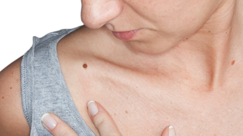 How you can check your skin for signs of the disease.