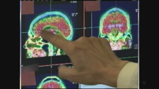 Brain injuries can alter teens' behaviour, girls especially: study